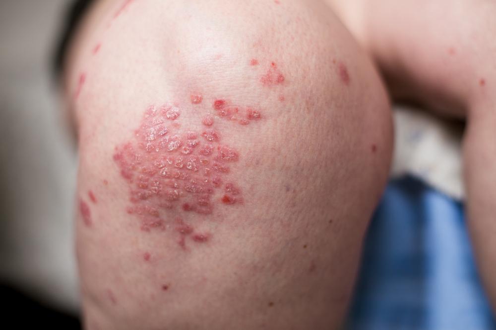 hogyan kell kezelni az alkoholos pikkelysömör vörös viszkető foltok a testen lázzal