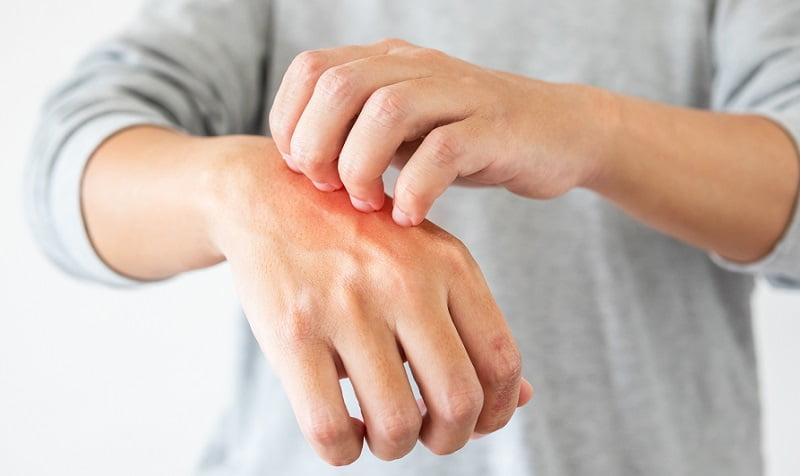 vörös foltok a kézen lehúzódnak és viszketnek, mint kezelni hogyan lehet megszabadulni a pikkelysömör népi gyógymódoktól