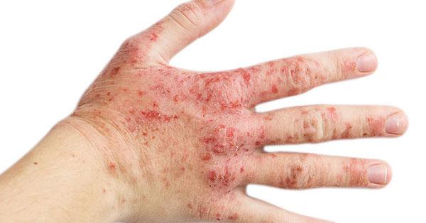 miért jelennek meg vörös foltok a tenyéren és viszketnek szolárium a pikkelysömör kezelésére