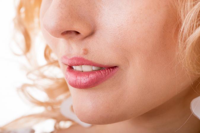 vörös anyajegyek az arcon hóna alatt viszketés piros foltok hogyan kell kezelni egy fotót