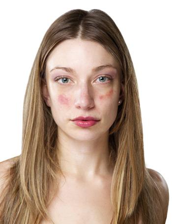 vörös foltok jelentek meg az arcon; mi ez? hogyan és mit kell kezelni a nem viszkető pikkelysömör